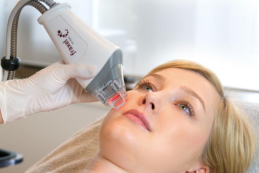 laserowe leczenie przebarwień