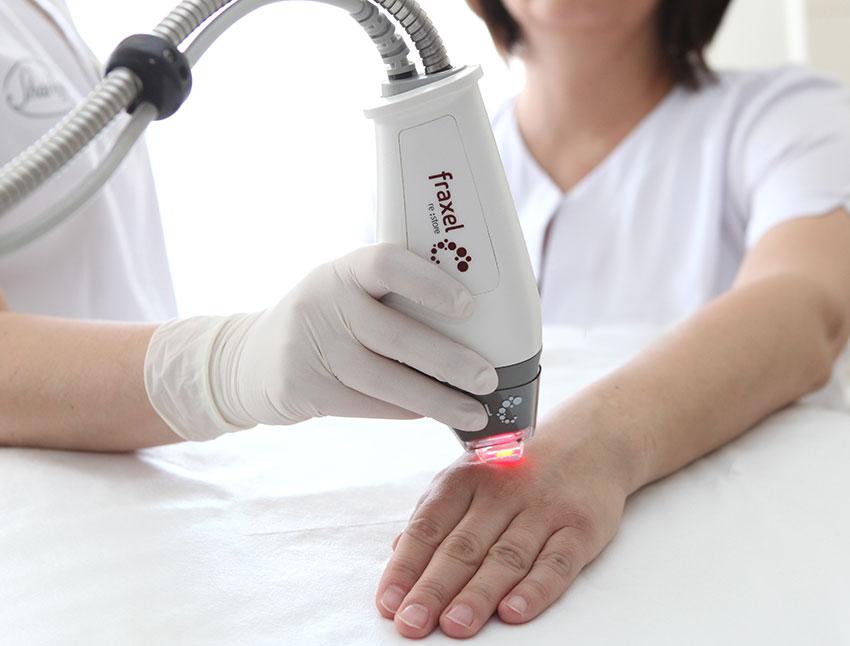 Leczenie przebarwień laser Fraxel